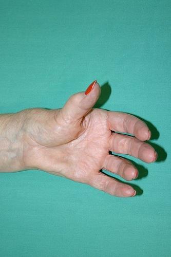 Comment soigner l'arthrose avec la nutrition