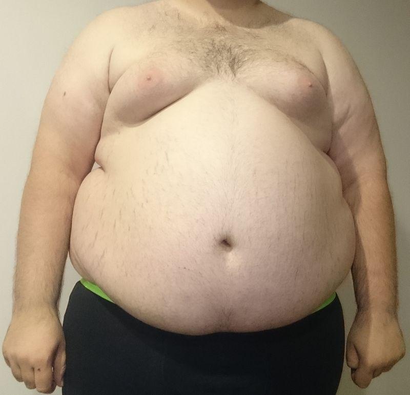 l'obésité comment se sortir de cette maladie